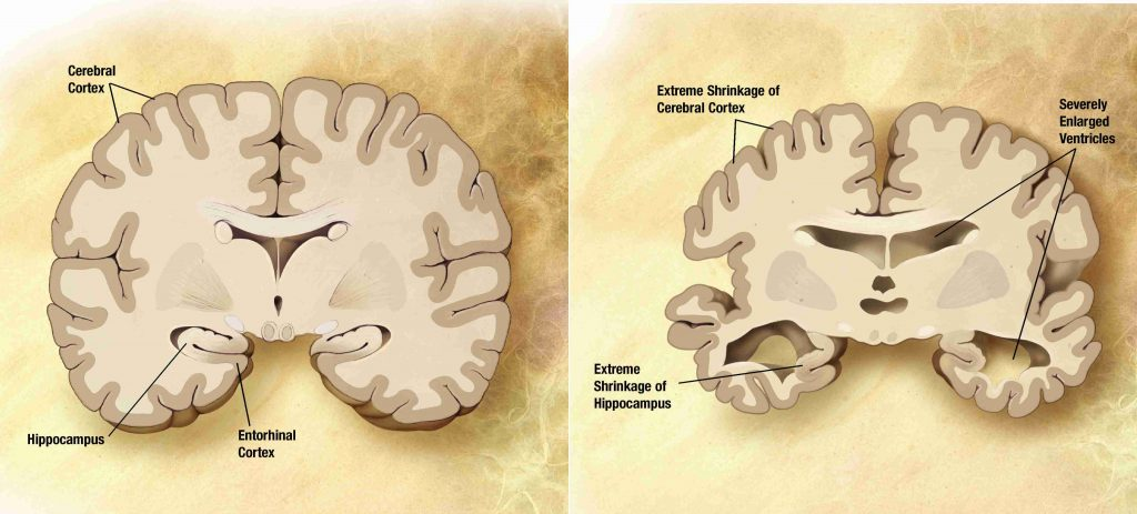 alzheimer's disease brain comparison