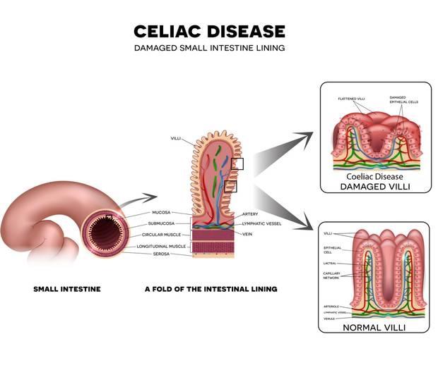 coeliac disease pathology