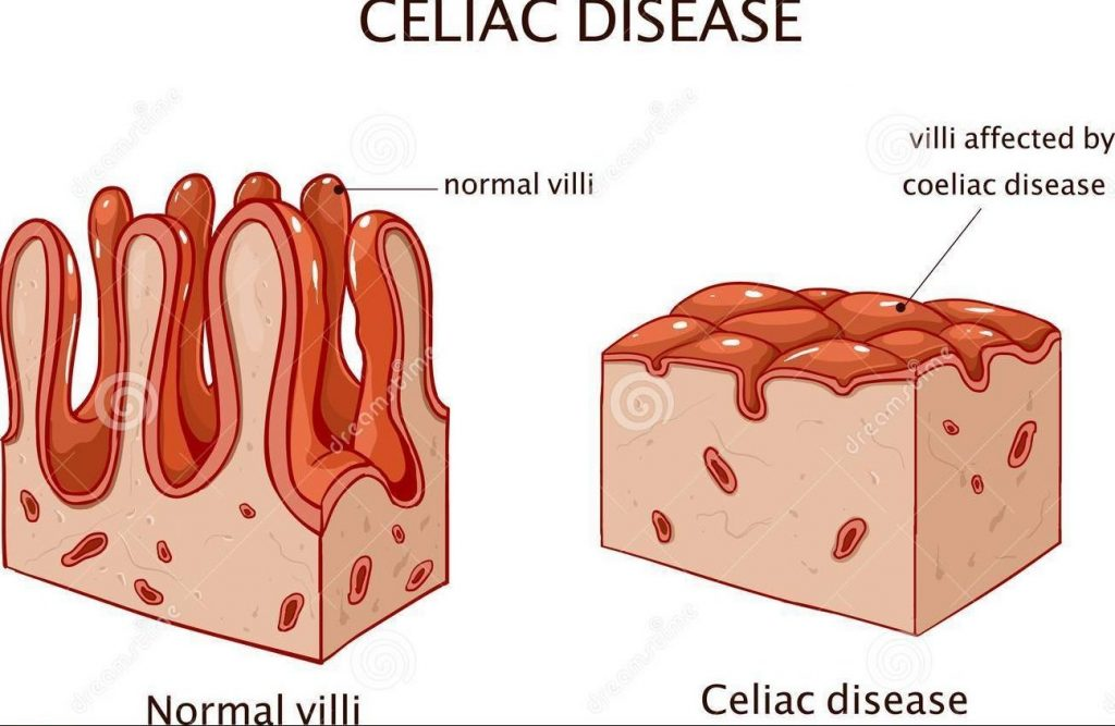 jejunal villi flattened in coeliac disease